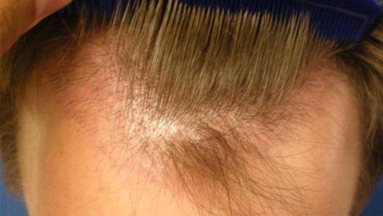 Εμφύτευση Μαλλιών