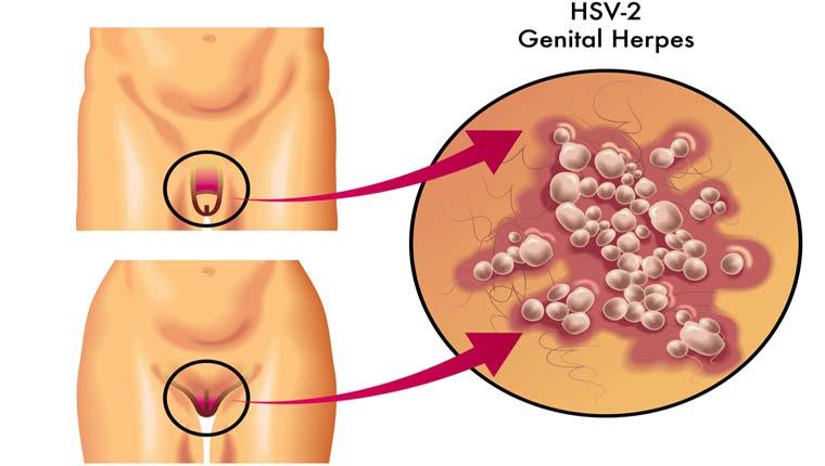 Έρπης Γεννητικών Οργάνων
