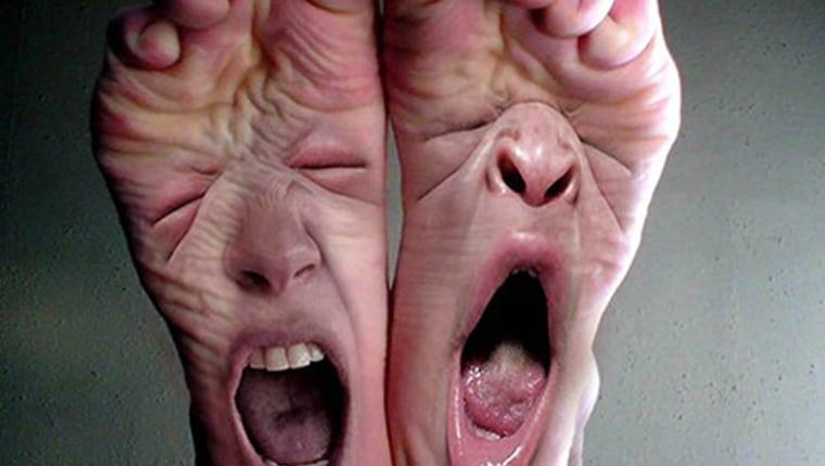 Έλκη Ποδιών