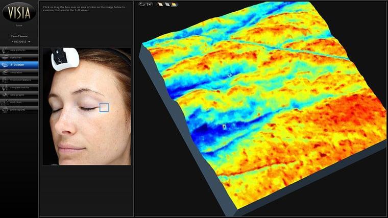 VISIA-3D-Viewer-screen-RGB