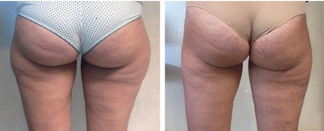 LipoLysis πριν και μετά