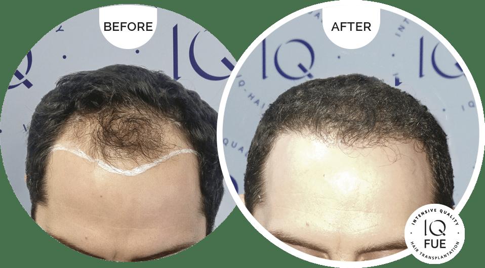 μεταμόσχευση μαλλιών IQ-FUE