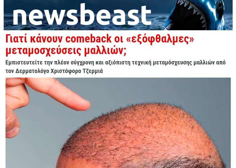 Newsbeast transplantation