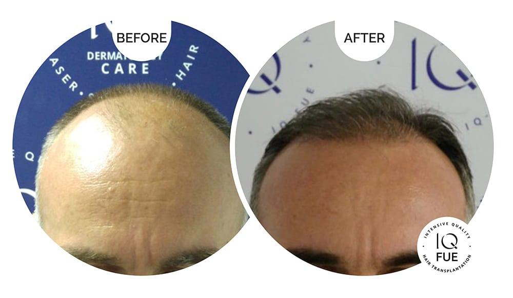 Φωτογραφίες Μεταμόσχευση Μαλλιών