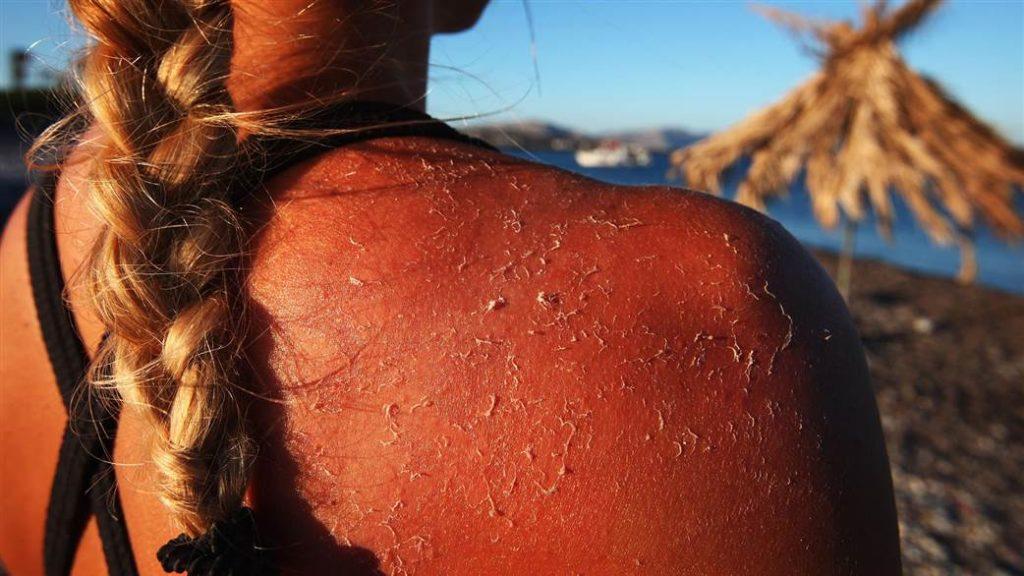 καρκίνος δέρματος, μελάνωμα